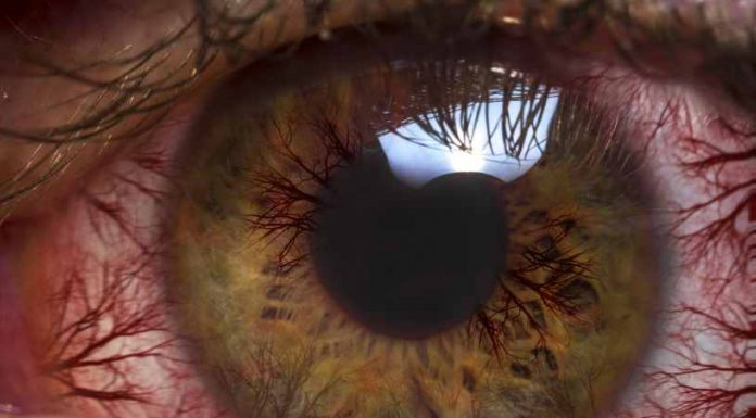 Glaucoma Tratamiento - Enfermedad Glaucoma