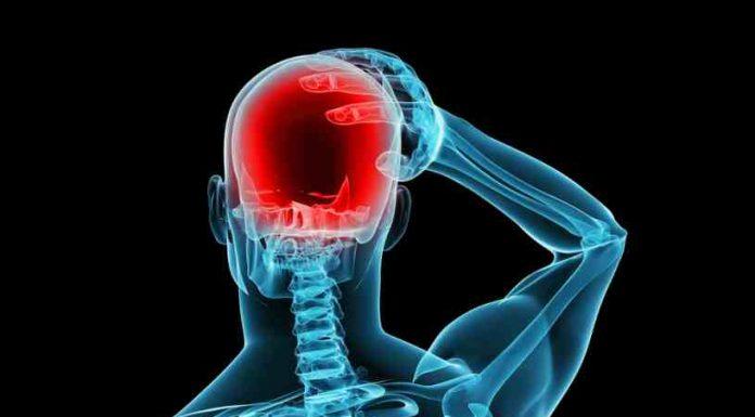 Fuertes dolores de Cabeza - Migrañas Salud