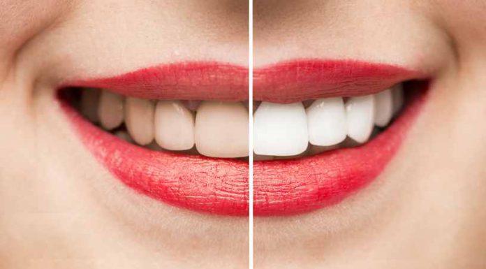 Blanqueamiento Dental - Mejorar la Salud con un Blanqueamiento Dental