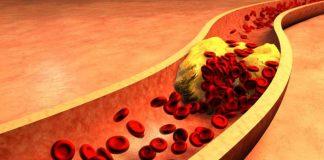 Remedios Caseros Colesterol - Remedios Caseros para el Colesterol