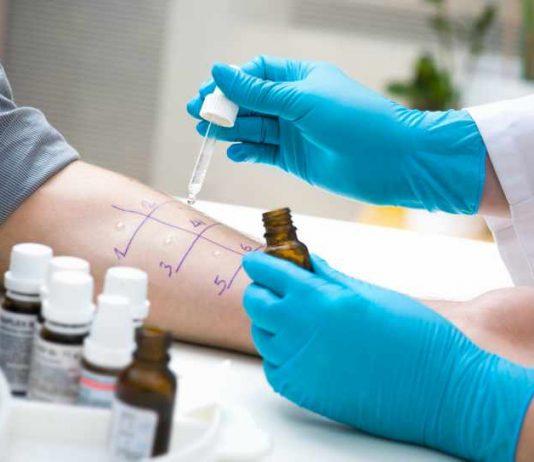Alergias más Comunes - Alergias que nos pueden Afectar