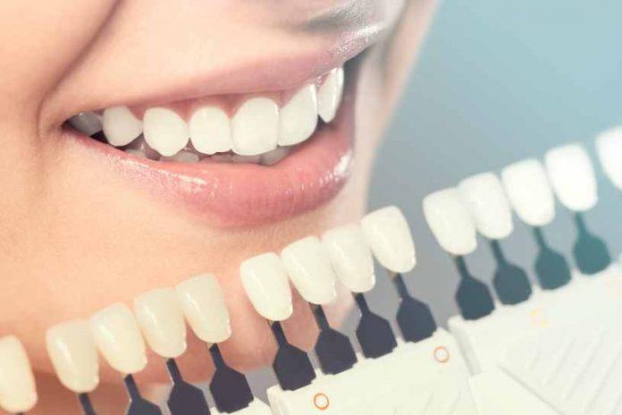 Blanqueamiento Dental - Salud con un Blanqueamiento Dental
