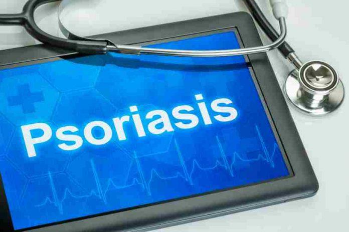 Remedios para la Psoriasis - Mejorar la Psoriasis