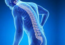 Osteoporosis Enfermedad de los Huesos - Osteoporosis Huesos