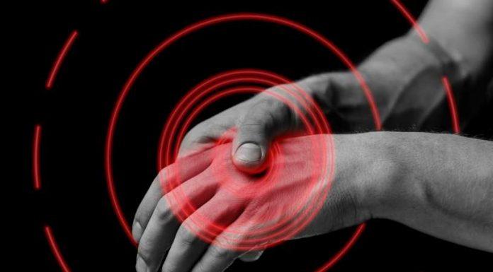 Remedios Caseros Artritis - Artritis Reumatoide