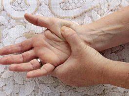 Artritis Reumatoide - Remedios Caseros Artritis