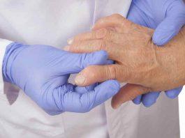 Remedios para la Artritis - Cuidados Artritis