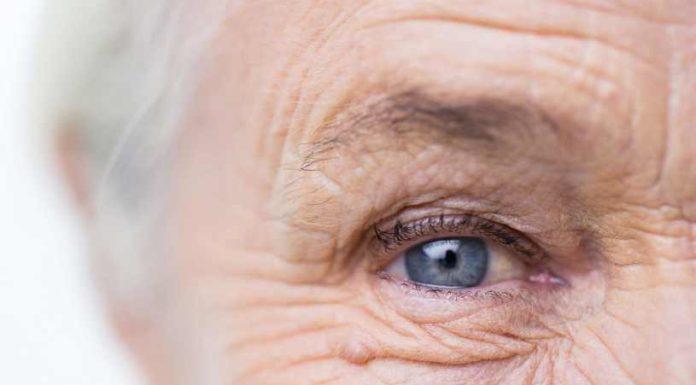 Tips de Belleza Arrugas - 5 Tips de Belleza para Prevenir Arrugas