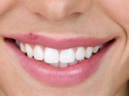Remedios Caseros Eficaces contra el Herpes Labial