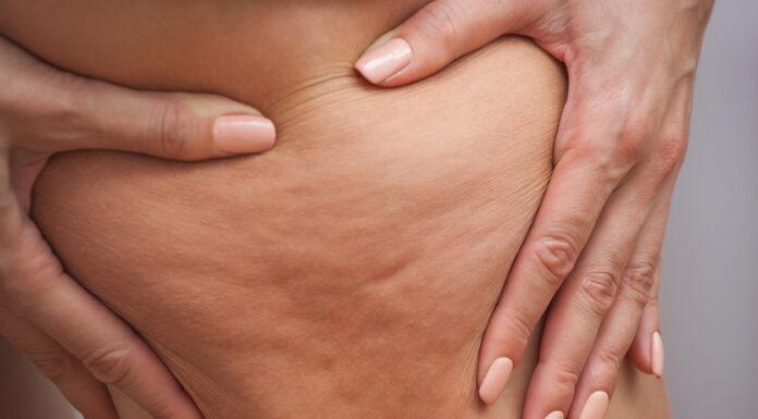 Consejos para Deshacerse de la Celulitis